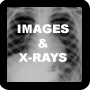 Images & X-rays